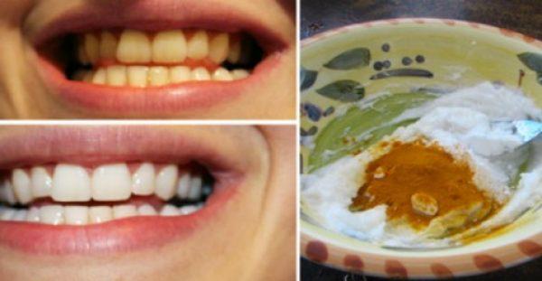 Ανακάτεψε 2 υλικά και τα έβαλε στα δόντια του. Το Αποτέλεσμα; ΑΠΛΑ ΔΕΝ ΥΠΑΡΧΕΙ!