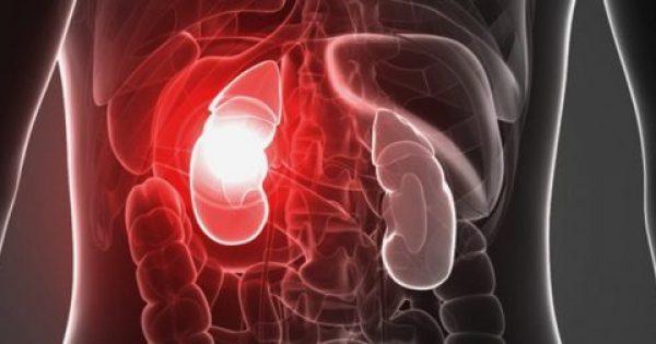 Νεφρική ανεπάρκεια: Αυτά είναι τα επικίνδυνα σημάδια