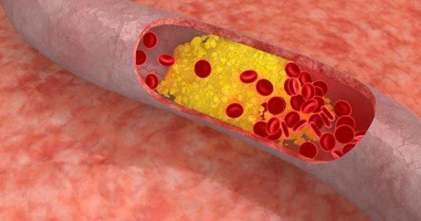Καλύτερη καρδιακή υγεία με μείωση χαμηλής πυκνότητας λιποπρωτείνη