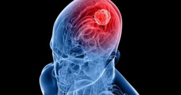 Ένοχα συμπτώματα καρκίνου του εγκεφάλου -Αίτια και παράγοντες κινδύνου (βίντεο)