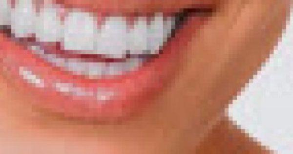 Το φρούτο που λειτουργεί σαν λευκαντικό δοντιών