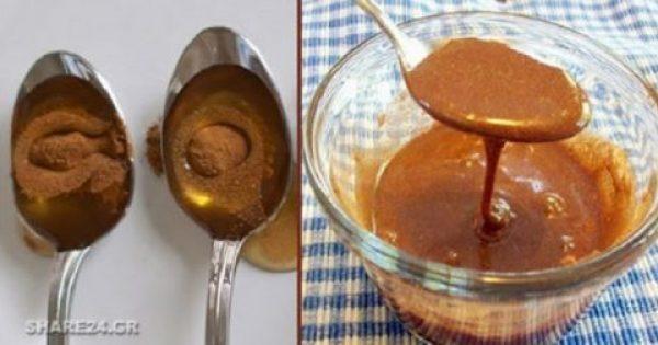 Χρησιμοποίησε μέλι με κανέλα και δες στο σώμα σου αυτές τις θεαματικές αλλαγές