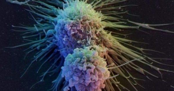 Μάχη κατά του καρκίνου: Νέες θεραπείες και ελπίδες για τους ασθενείς