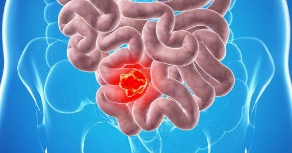 Καρκίνος του παχέος εντέρου: Προσοχή με το αλκοόλ – Πόσα ποτά ανεβάζουν τον κίνδυνο κατά 21%