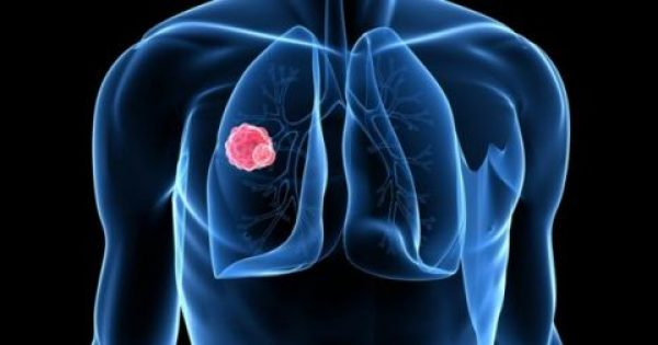 Καρκίνος του πνεύμονα: Τα σημάδια που δεν πρέπει να αγνοήσετε