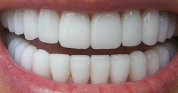 Λεύκανση των δοντιών και αντιμετώπιση της περιοδοντίτιδας με δύο κοινά βότανα..