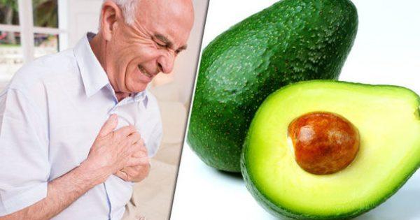 Γιατί ξαφνικά οι γιατροί λένε να τρώμε αβοκάντο και μπανάνες [vid]