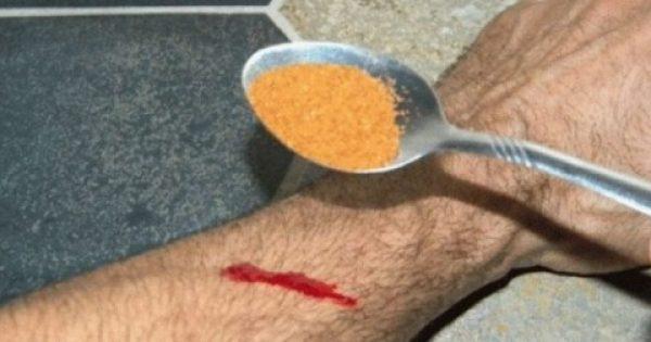 Δείτε ποιο μπαχαρικό (!) βάζει στο χέρι του για να σταματήσει την αιμορραγία