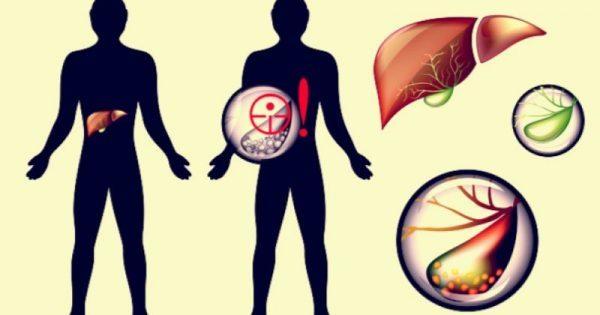Πέτρες στην χολή: Συμπτώματα, αντιμετώπιση και πρόληψη!!!