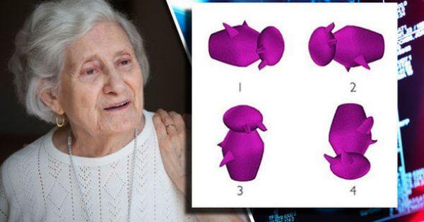 Τεστ για Αλτσχάιμερ: Βλέπετε ποιο σχήμα διαφέρει από τα άλλα; Τι λένε επιστήμονες! [pics]