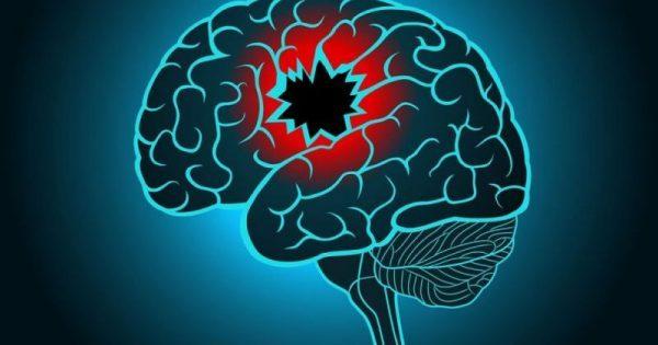 Αυξάνονται οι παράγοντες κινδύνου για εγκεφαλικό – Ποιοι είναι οι βασικοί!!!