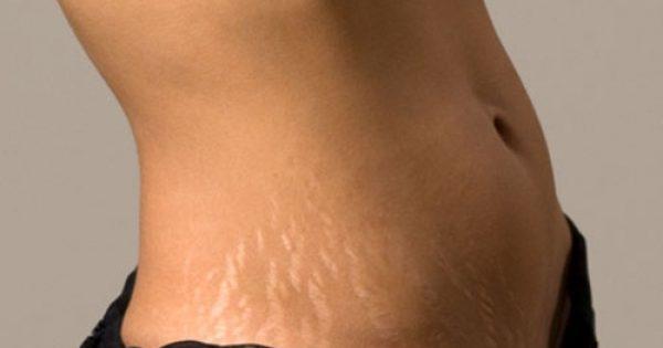 Ουλές και ραβδώσεις στο δέρμα θεραπεύονται με νέες τεχνολογίες