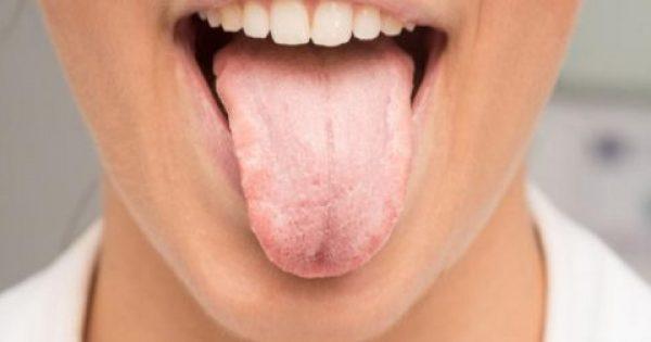 Λευκή γλώσσα: Τι σημαίνει και πότε πρέπει να σας ανησυχήσει