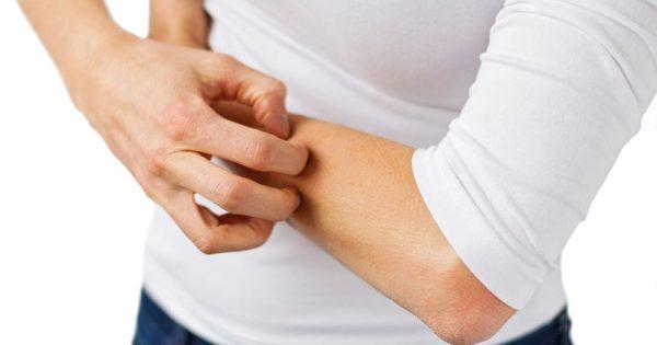 Έκζεμα: 6 πράγματα που αποκαλύπτει για την υγεία σας
