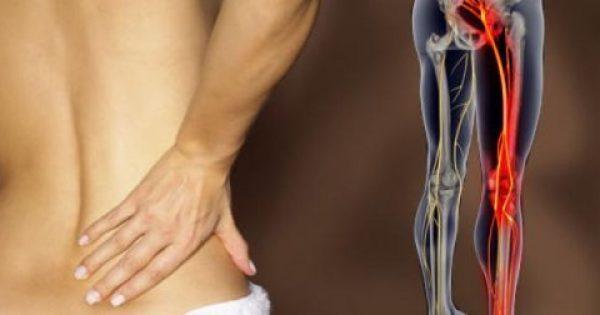 Δείτε 2 ασκήσεις που ξεκλειδώνουν το ισχιακό νεύρο και διώχνουν τον πόνο σε 2 μόλις λεπτά! (φωτο)
