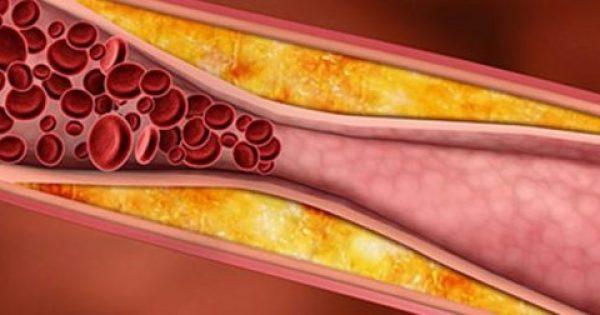 Έχετε υψηλή χοληστερίνη; Ποιοι πρέπει να υποβάλλονται τακτικά σε εξέταση & ποιες οι φυσιολογικές τιμές