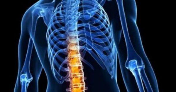 Φάρμακο σταματά την εξέλιξη της αγκυλοποιητικής σπονδυλαρθρίτιδας