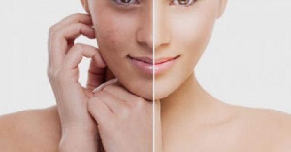 10 τροφές για να ενισχύσεις το κολλαγόνο στο δέρμα σου!