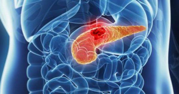 Καρκίνος στο πάγκρεας: Αυτά είναι τα συμπτώμτα