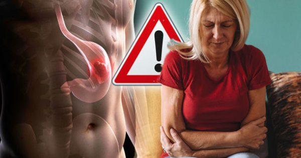 """Καρκίνος του στομάχου: Τα συμπτώματα που μπερδεύουμε σαν """"κάτι περαστικό"""""""