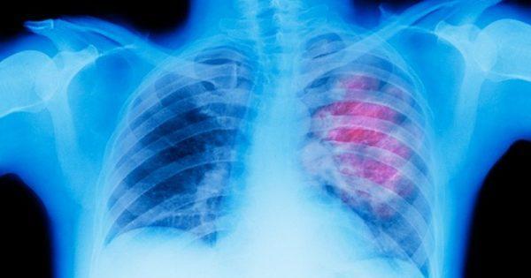 Σύγχρονη μάστιγα ο καρκίνος του πνεύμονα αλλά βρισκόμαστε στην αρχή του …τέλους του