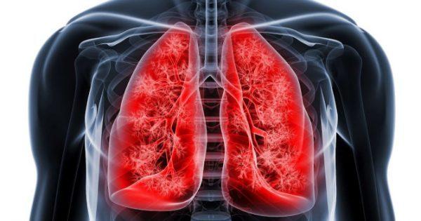 26ο Πανελλήνιο Πνευμονολογικό Συνέδριο: Θωρακοχειρουργική με συστηματική χημειοθεραπεία και ακτινοθεραπεία για το μη μικροκυτταρικό CA πνεύμονα