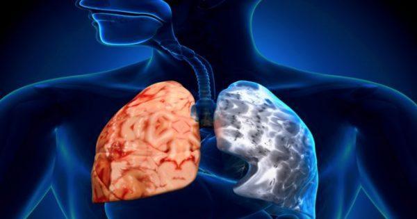 ΧΑΠ: Νέα μελέτη δημοσιευμένη στο The Lancet