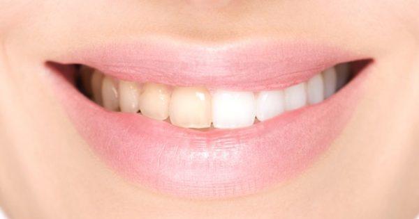 Κίτρινα δόντια: Αντιμετώπιση στο σπίτι με έξυπνες και απλές λύσεις