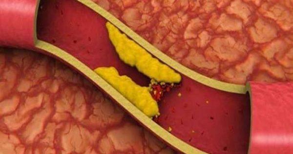 Σωτήρια η μέγιστη δοσολογία στατίνης σε ασθενείς υψηλού κινδύνου