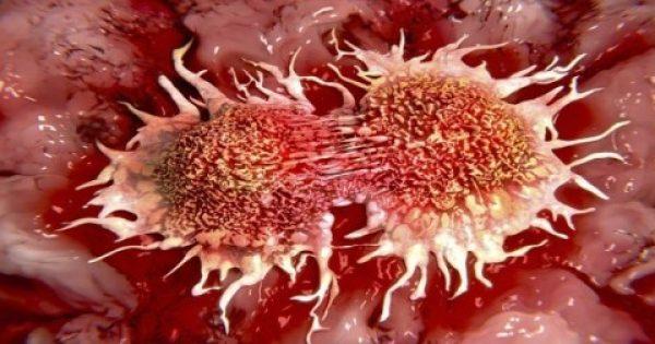 Γιατί κρύβεται από τον κόσμο:10 κύριες αιτίες καρκίνου που χρησιμοποιούμε καθημερινά