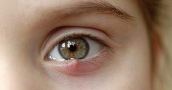 Κριθαράκι στο μάτι: Τι κάνουμε όταν βγαίνει εσωτερικά και τι εξωτερικά