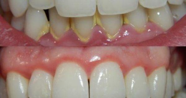 ΑΠΙΣΤΕΥΤΟ! Να πως θα απαλλαγείτε από την πέτρα στα δόντια με 100% φυσικό τρόπο