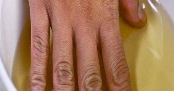 Βάζει το χέρι της σε μηλόξιδο δύο φορές την εβδομάδα. Μόλις μάθετε τον λόγο θα το κάνετε κι εσείς!