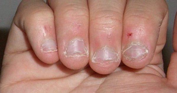 Οι άνθρωποι που τρώνε τα νύχια τους έχουν αυτό το χαρακτηριστικό στην προσωπικότητα τους.
