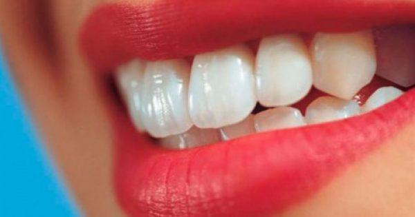 Πώς να αποκτήσεις πιο λευκά δόντια με φυσικό τρόπο. Είναι πανεύκολο!