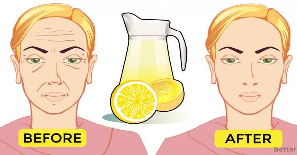 Ρυτίδες τέλος: Δοκιμάστε αυτό το σπιτικό τονωτικό με το λεμόνι και δείξτε πιο φρέσκες στο λεπτό