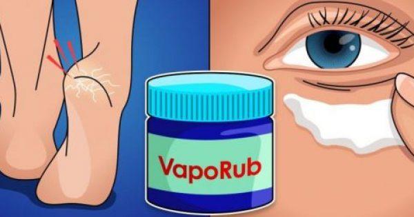 14 εναλλακτικές χρήσεις του VapoRub που θα εύχεστε να γνωρίζατε νωρίτερα