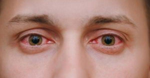Κοκκίνισμα ματιών: 5 κοινές αιτίες και πώς θα το προλάβετε!!!