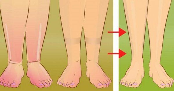 5 Πρακτικές Συμβουλές για να Ανακουφίσετε τα Πρησμένα Πόδια σας με Τρόπο Φυσικό.