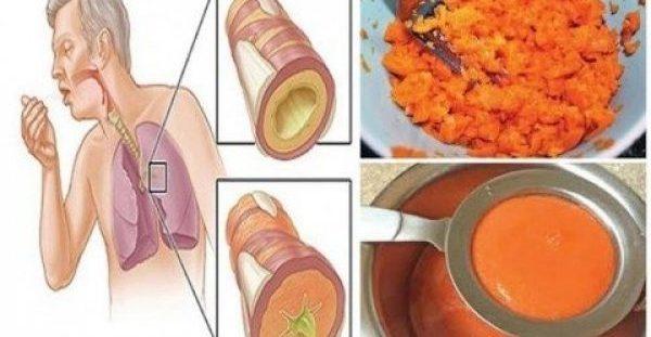 Αρχαία συνταγή: Αφαιρεί το φλέγμα από τους πνεύμονες & για παιδιά