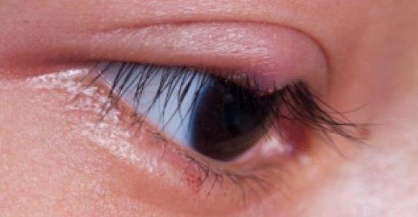 Κριθαράκι στο μάτι: Η λύση βρίσκεται στην κουζίνα σας!