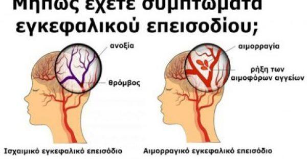 Εγκεφαλικό επεισόδιο: Πώς θα αναγνωρίσετε και πως θα αντιμετωπίσετε τα σημάδια