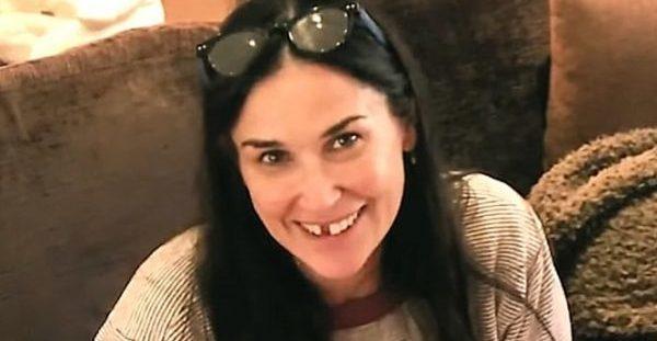 Η Demi Moore είπε ότι έχασε δόντια εξαιτίας αυξημένου στρες – Τι της… απαντούν οι επιστήμονες