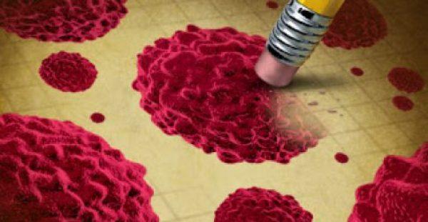 Καρκίνος του προστάτη: Νέο 3-σε-1 τεστ αίματος επιτρέπει θεραπεία πολύ μεγαλύτερης ακρίβειας – Τι λένε οι ειδικοί