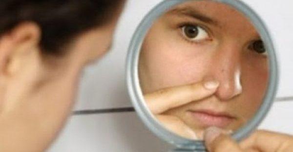 Έχετε μαύρα στίγματα γύρω από τη μύτη; Υπάρχει λύση!