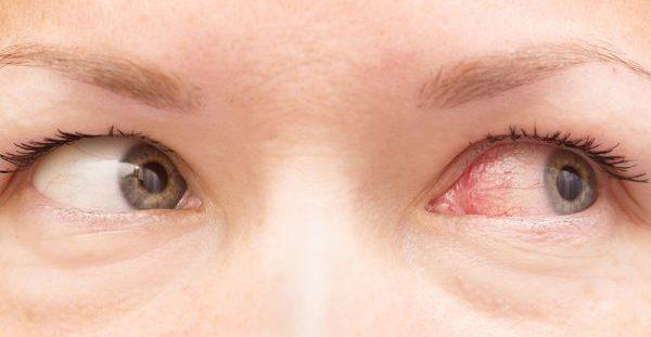 Επιπεφυκίτιδα: Λάθος θεραπεία με αντιβιοτικά για 6 στους 10 ασθενείς