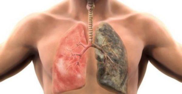 Ο καρκίνος του πνεύμονα δεν προτιμά μόνο τους καπνιστές