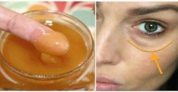Εφαρμόστε αυτό το μείγμα στους μαύρους κύκλους των ματιών σας και εξαφανίστε τους!