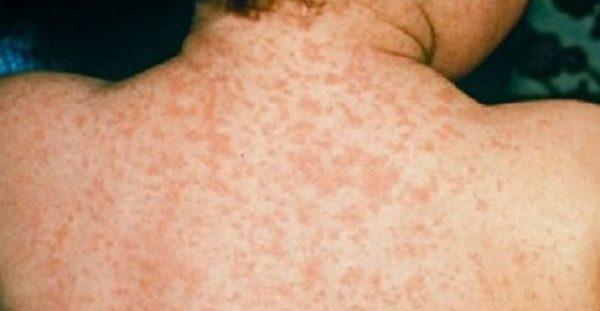Συνεχής ο συναγερμός – Τα μικρά παιδιά χτυπάει η ιλαρά
