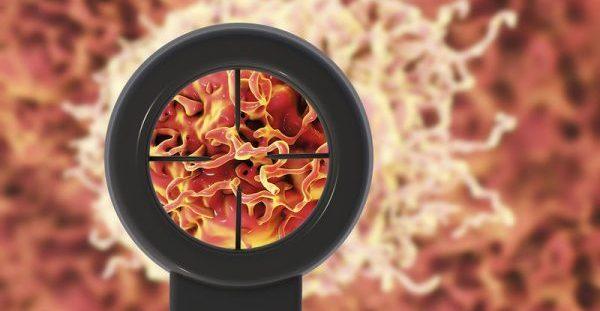 Τροφές που προκαλούν φλεγμονή και ευνοούν την ανάπτυξη καρκίνου